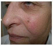 базалиома кожи на лице